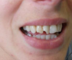 before porcelain veneers at Lazer and Associates Family Dentistry