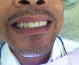 Before professional teeth whitening in Fallston, MD