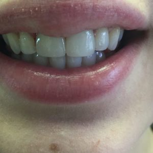 After dental crowns procedure in Fallston, MD