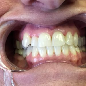 before getting dental crowns in Fallston MD