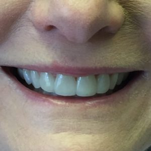 Dental Crowns in Fallston, MD