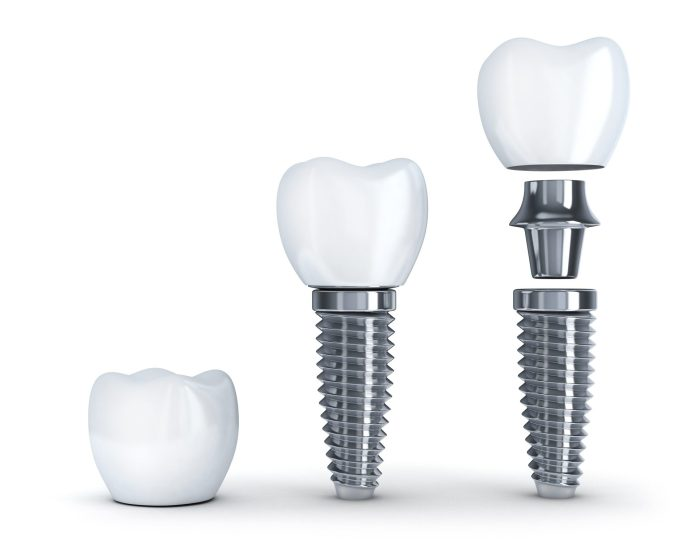 Dental Implant procedure in Fallston MD