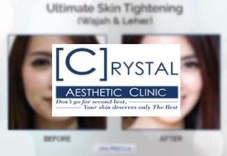 Harga Perawatan Di Crystal Clinic