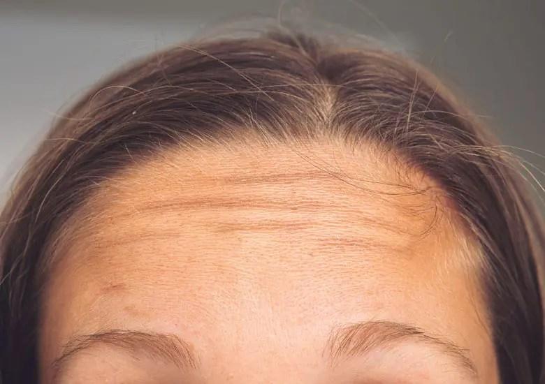 Remedios caseros para las arrugas de la frente