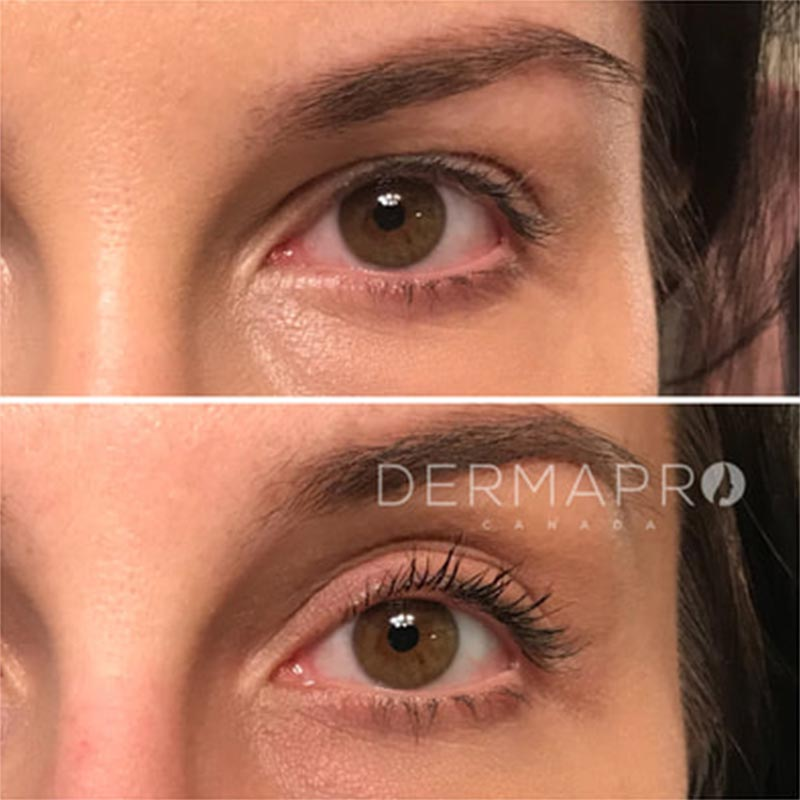 Plasma Pro • Harrogate Health & Beauty Cosmetic Clinic