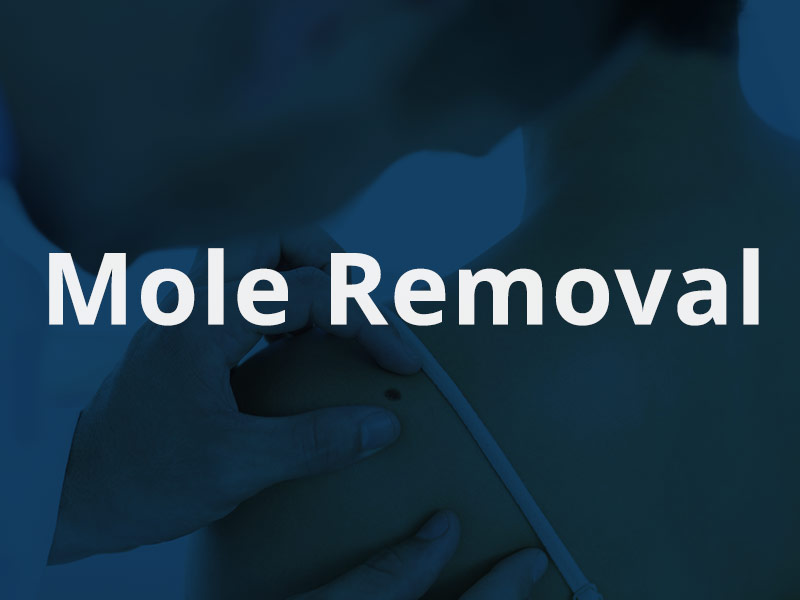 product-photos-mole-removal