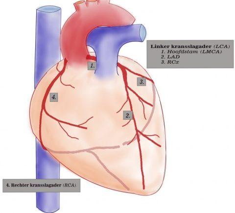 anatomie coronairen