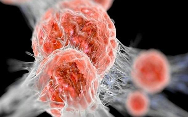 جائزة نوبل للطب لأمريكي وياباني توصلا لعلاج جديد للسرطان