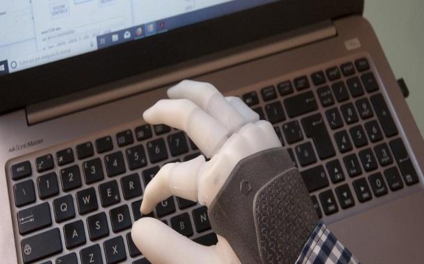بعد تجارب طويلة على الأطراف الذكية...زراعة أول يد إلكترونية