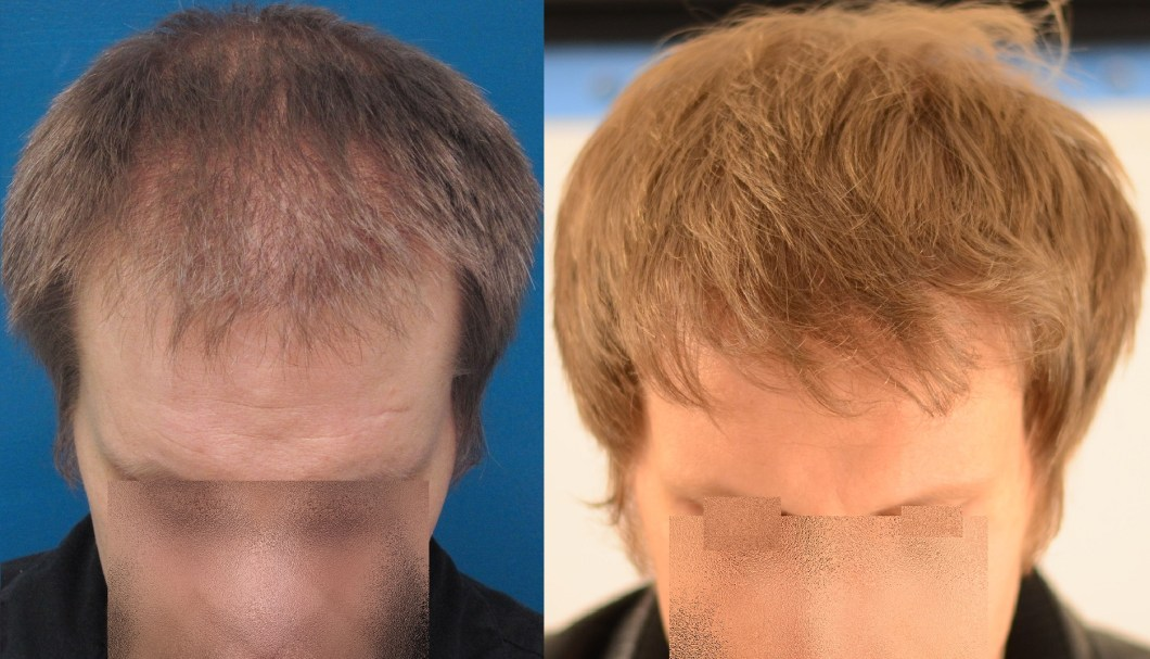 Propecia Hair Growth Reddit | Amathair co