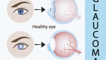 Psychological Impact of COVID-19on Ophthalmologists High