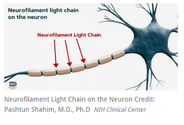 Neurofilament Light Chain on the Neuron