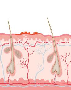 Bild von einer Gürtelrose - Illustriert