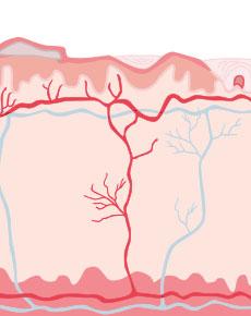 Bild von Mycosis Fungoides - Illustriert