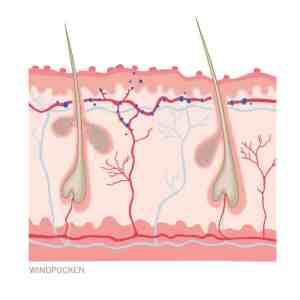 Windpocken - Hautkrankheit. Ein Querschnitt durch die Haut als Illustration.