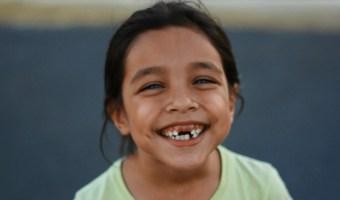 Bye-Bye Baby Teeth: A Loose Tooth Guide