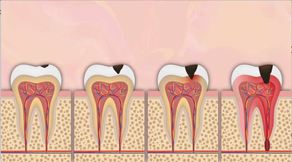 Learn how researchers found that environmental factors seem to be the prime cause of cavities — not genetic makeup.