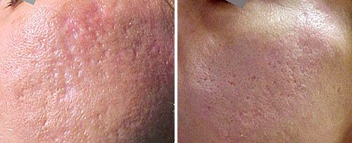 Acne And Scar After Small
