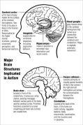 חלקי מוח הקשורים באוטיזם.