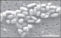 חיידקים שגודלו על ארסן. צילום: ג'ודי שווייצר בלום