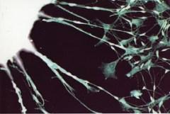 תאי גזע שעברו תיכנות מחדש באמצעות אר-אן-אי (RiSP) מגדלים שלוחות ארוכות האופייניותלתאי עצב, לאחר העברתם למשטח גידול חדש