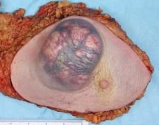 גידול בסרטן השד. צילום: מתוך ויקיפדיה