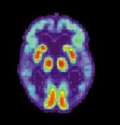 סריקת מוחו של חולה אלצהיימר. ירידה בתפקוד איזורים רבים במוח. צילום: מתוך ויקיפדיה