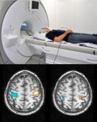 סריקת מוח באמצעות fMRI כדי לקרוא חלומות