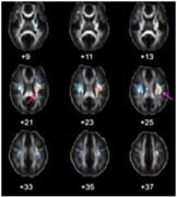 השוואת מוחות הנבדלים במעט מבחינה גנטית. איור: פול תומפסון, UCLA