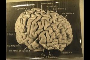 החצי הימני של מוחו של איינשטיין. צילום: National Museum of Health and Medicine
