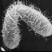 תמונת מיקרוסקופ אלקטרונים סורק של זוג טֶטְרָהִימֶנָה במהלך הזדווגות. צילום: The SEPA ASSET (Advancing Secondary Science Education with Tetrahymena) program at Cornell University