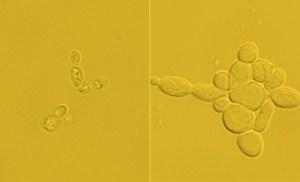משמאל: התאים ההתחלתיים בעלי תכולה של 15% ליפידים. מימין: תאים מהונדסים בעלי תכולה של כמעט 90% ליפידים. [באדיבות: University of Texas at Austin]