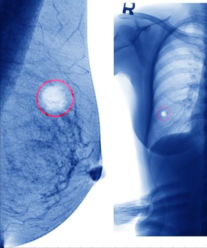 תצלום רטנגן של גידולי סרטן השד. צילום: shutterstock
