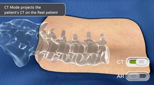 הדמיה של ניתוח בעמוד השידרה. איור: אוגמדיקס