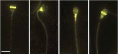 מיקומם השונה של אופסינים שונים על תא זרע של אדם, כפי שהם נראים תחת מיקרוסקופ, התגלה באמצעות סימון בנוגדן פלואורסצנטי (בצהוב בוהק)