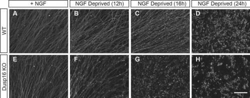 הרחקת גורמי גידול (NGF) מהמצע גורמת לפירוק עצבי של תאי עצב חסרי Dusp16 בשלב מוקדם יותר ובקצב מהיר יותר (שורה תחתונה); לעומת תאי העצב המקוריים (שורה עליונה), כפי שאפשר לראות בדגם הלא-רציף של צביעת האקסונים. מקור: מגזין מכון ויצמן.