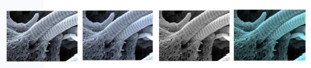 סיבי קולגן בתהליך של פירוק אנזימטי. לפעמים האנזימים יוצאים מכלל שליטה, ואז החיתוך נעשה בצורה לא-מבוקרת. מקור: מגזין מכון ויצמן.