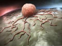הדמייה של תא סרטני. מקור: טרייל-אין פארמה.
