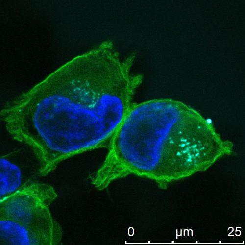 """חדירה של ננו-חלקיקים (תכלת) המכילים רצפי רנ""""א קצרים לתוך תאי סרטן לבלב (מסומנים בירוק וגרעין התא שלהם מסומן בכחול). צולם במיקרוסקופ קונפוקלי ע""""י הדס גיבורי, אוניברסיטת תל אביב."""