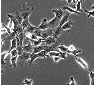 תאי סרטן השד בתרבית כפי שהם נראים תחת מיקרוסקופ אופטי. אפשר להבחין ברצועות המחברות בין התאים