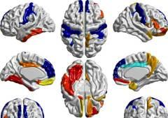 אבחון מוקדם של אוטיזם עשוי לשפר את סיכויי ההצלחה של טיפולים עתידיים. (איור: מתוך המאמר של הזלט ועמיתיה, נייצ'ר, גיליון 542 - 348 | NATURE | VOL 542 | 16 FEBRUARY 2017LETTERdoi:10.1038/nature21369Early brain development in infants at high risk for autism spectrum disorder.