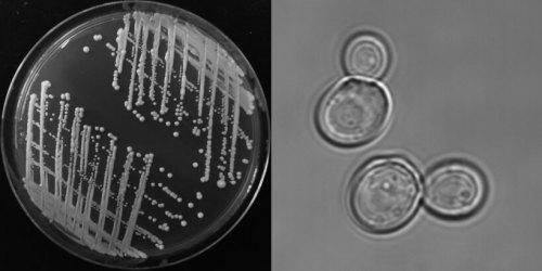 שמר האפייה, מודל למחקר ביולוגי, על מצע מזון מוצק (משמאל) ובהגדלה באמצעות מיקרוסקופ אור (ימין). קרדיט: Photo courtesy of Gazit Lab
