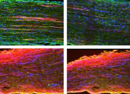 צמיחה מחדש של שלוחות תאי עצב המוקפות בתאי גְלִייָה (גרעיני התאים מסומנים בכחול), בעצב השת של עכבר, שבעה ימים לאחר פציעה (למעלה) ו-25 ימים לאחריה (למטה). בעכברים ללא Silc1 (טור שמאלי), השיקום פחות עוצמתי – שלוחות תאי העצב שצמחו מחדש (אדום) קצרות יותר מאשר בעכברים בעלי עותק Silc1 פעיל. צולם באמצעות מיקרוסקופ פלואורסצנטי. צילום: פרופ' איגור אולינסקי, מכון ויצמן