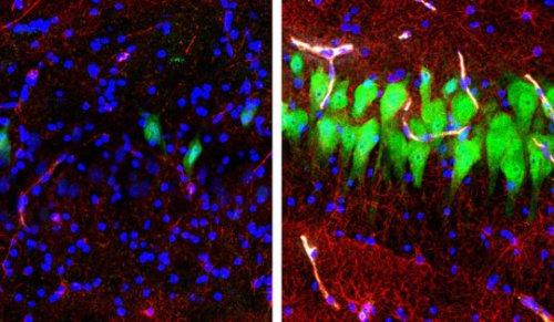 כתמי אימונופלורסנט עבור נוירונים (NeuN, ירוק), אסטרוציטים (GFAP, אדום) וגרעיני תאים (DAPI, כחול) באזור המוח של ה- H3 של המוח בהיפוקמפוס או unperfused במשך 10 שעות לאחר המוות (משמאל) ולאחר שימוש בטכנולוגית BrainEx (ימין). 10 שעות לאחר המוות, נוירונים ואסטרוציטים עוברים בדרך כלל התפוררות תאית, אלא אם כן מצילים אותם בעזרת מערכת BrainEx. קרדיט: סטפנו ג. דניאלה , Zvonimir Vrselja; מעבדת Sestan; בית הספר לרפואה, ייל