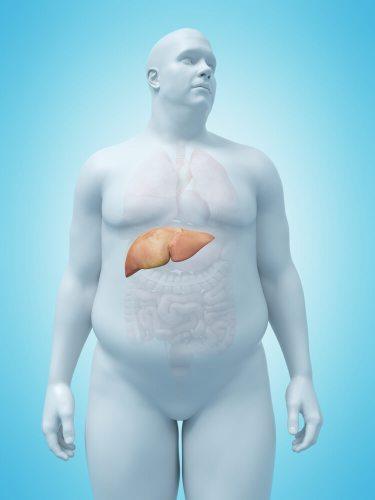 כבד שומני אצל בעלי משקל עודף. איור: shutterstock