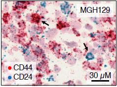 גימות רקמה של גידולי גליובלסטומה עם תאים בשני מצבים שונים, המסומנים באדום ובכחול