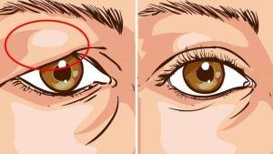 Göz kapağı düşüklüğünü yok eden doğal tarif