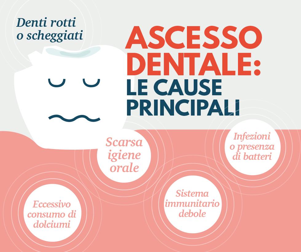 ascesso dentale - infografica cause