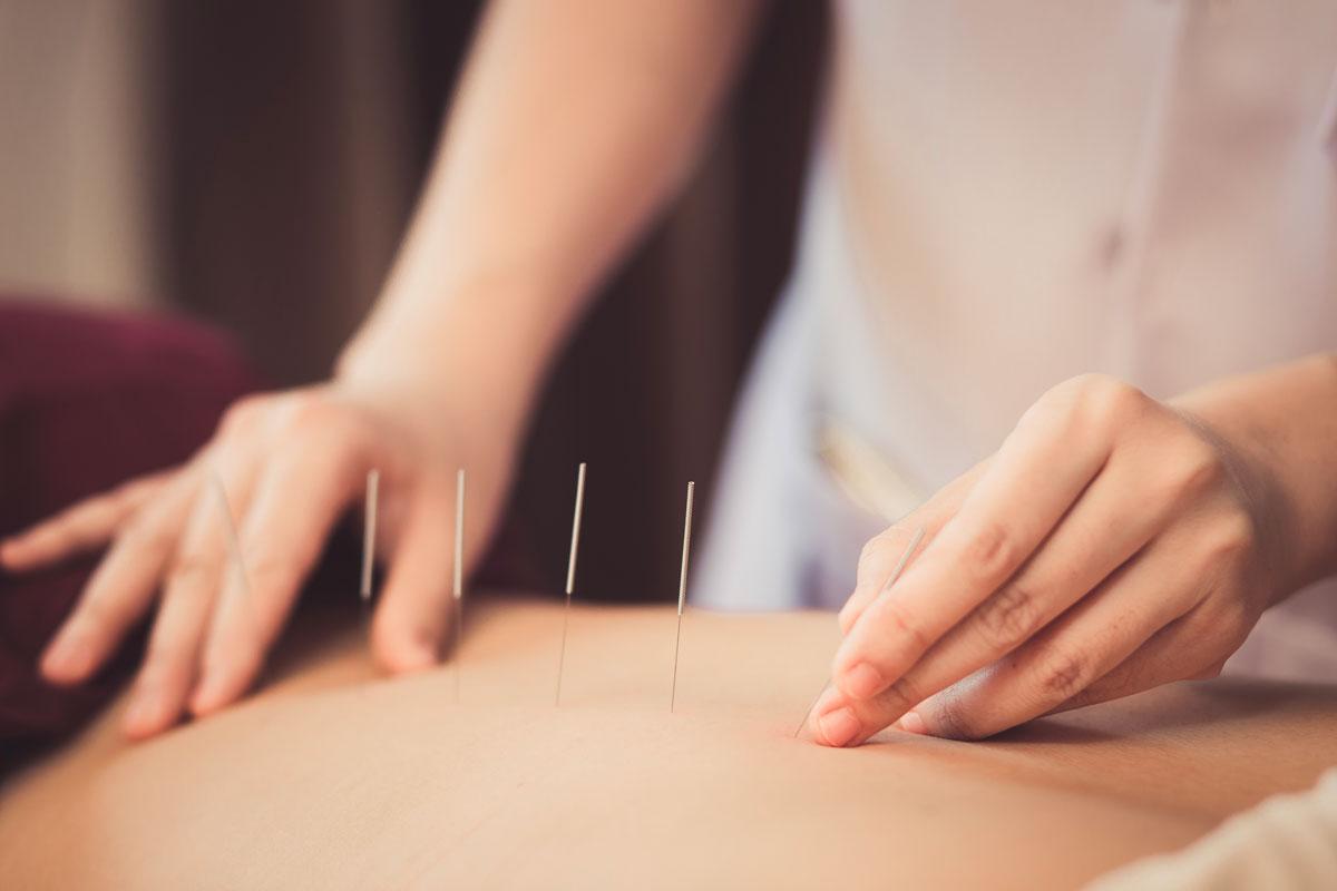 Agopuntura: come funziona e quali sono i benefici