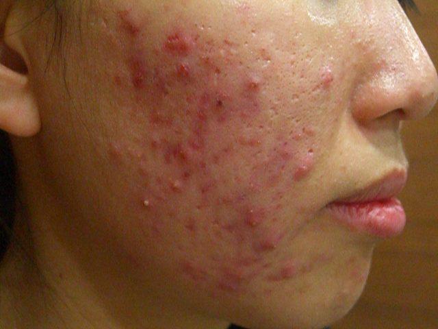 青春痘 – 范姜皮膚科診所